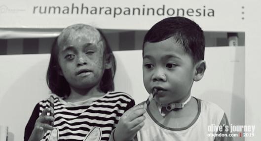 rumah harapan indonesia, adik dampingan di rhi, galang dana untuk rhi, sakit jantung bawaan pada anak